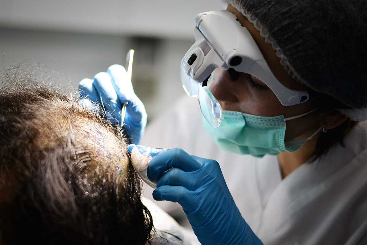 New Advancements in Hair Restoration